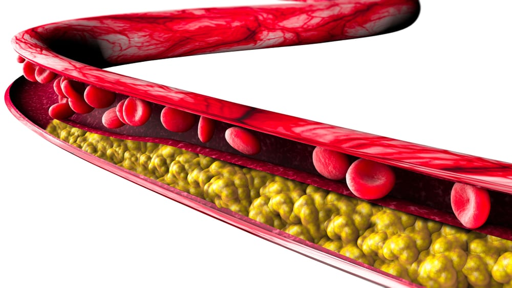 Management of blood cholesterol just got personal